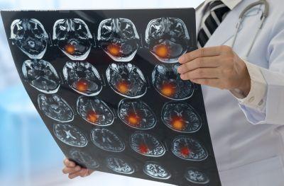 Ученые считают, что последствия COVID-19 для мозга сравнимы с инсультом